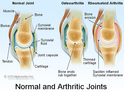 arthritic_joints