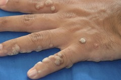 Common-Warts (1)