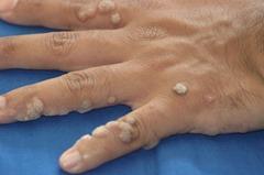 Common-Warts (1)