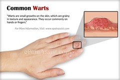 common-warts