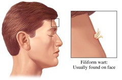 flpform warts 2