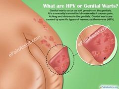 genital-warts 2